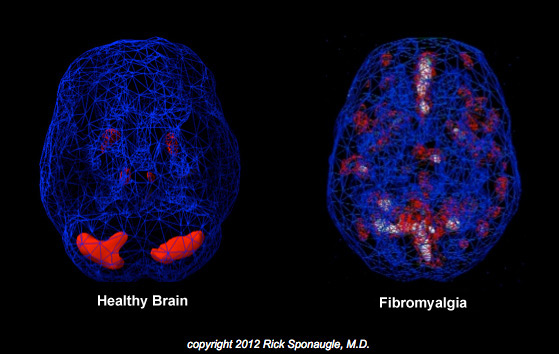 Fibromyalgia treatment - Healthy brain versus Fibromyalgia brain shows accessive red and white coloration over-electrified brain regions